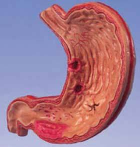 gastritis of the stomach