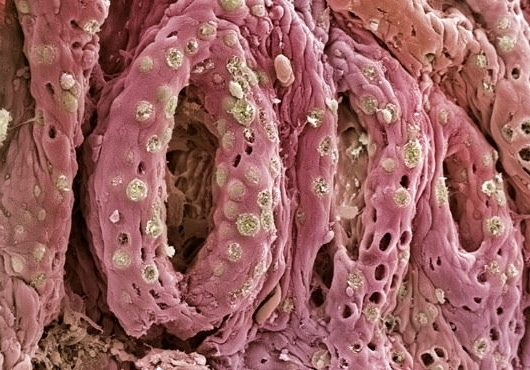 Colitis and mucus