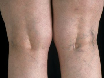 Therapeutic treatment of varicose veins