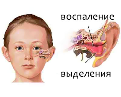signs of otitis in children