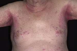 how to get rid of scabies at home