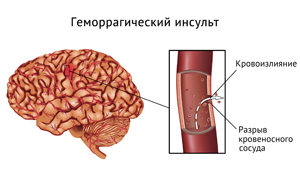venstre side af hjernen
