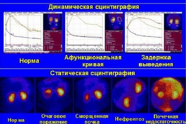 Indications, interpretation of results, method of renal scintigraphy