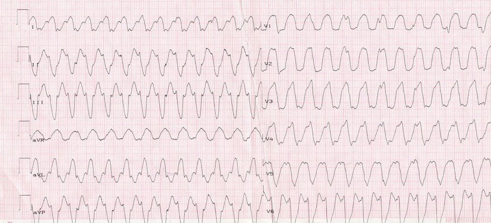 Electrocardiogram for arrhythmia