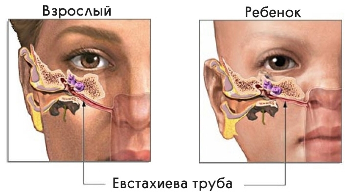 internal auditory canal in a child