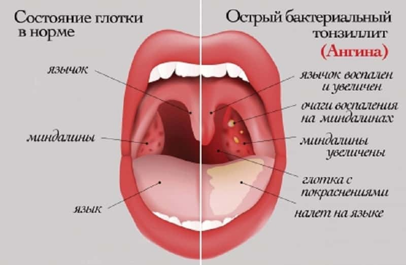 causes of white deposits on the tonsils