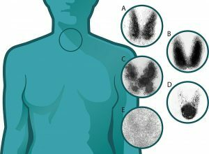 When is thyroid scintigraphy indicated and contraindicated?