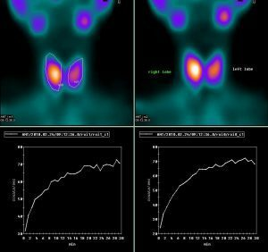 Implications after thyroid scintigraphy