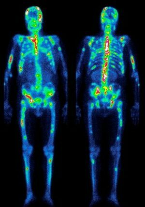 Advantages and disadvantages of bone scintigraphy