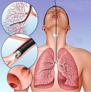 How is a lung biopsy taken?
