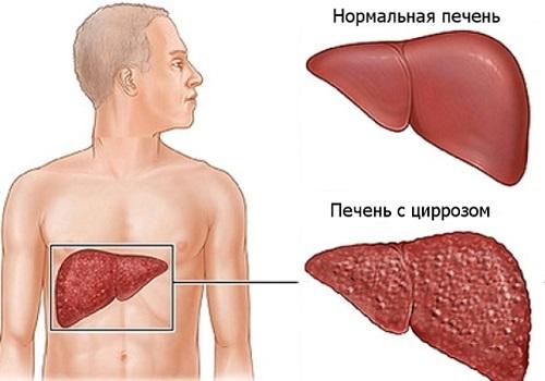 symptomen zieke lever