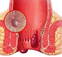 The initial stage of hemorrhoids