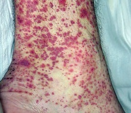 Vasculitis on the leg