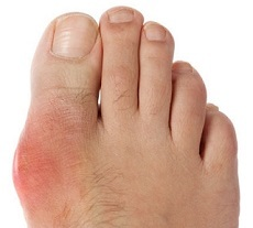 what is foot arthritis