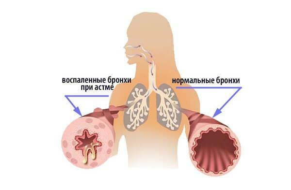 Atopic bronchial asthma is what