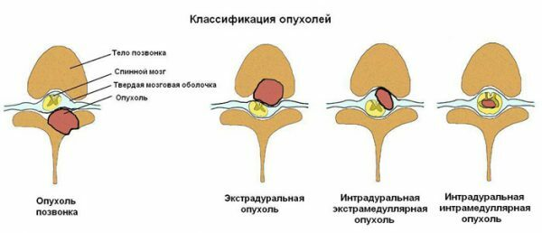 Classification of tumors of the spinal cord