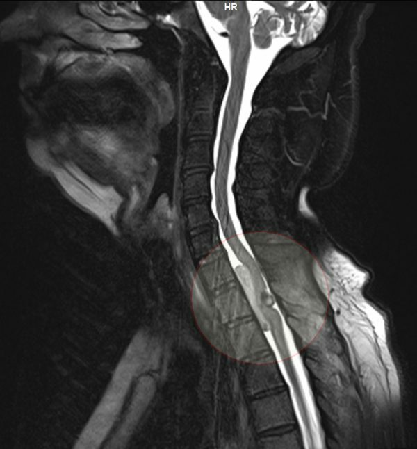 MRI picture of the ring-shaped tumor of the spinal cord