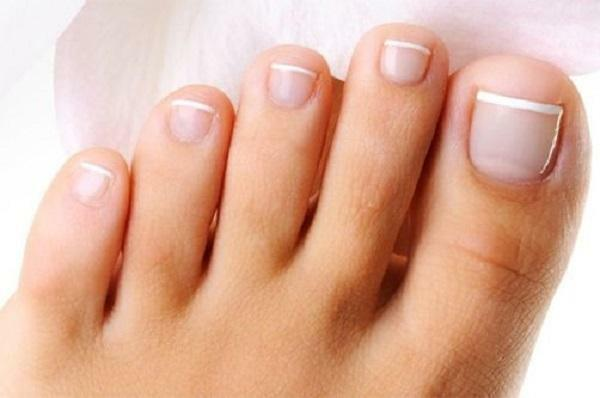 How to treat a fungus on a nail